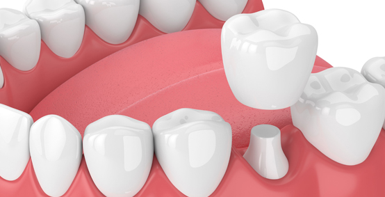 Porcelain Dental Crowns Be Needed