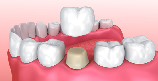 What Are Porcelain Dental Crowns