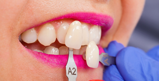 What Makes You A Good Candidate For Porcelain Veneers