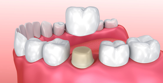 Why Are Cerec Crowns Needed
