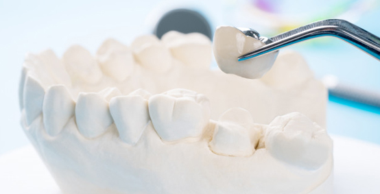 Procedure For Porcelain Dental Crowns