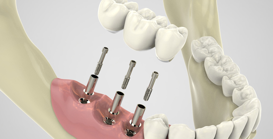 The Procedure For Dental Implants