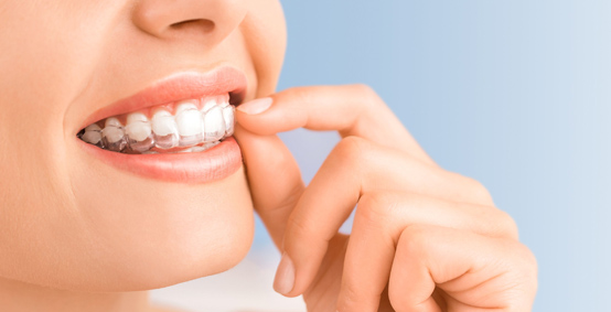 Treatment For Invisalign